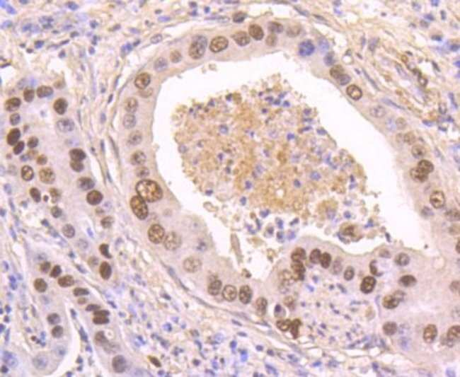 p53 (p Ser392) Rabbit anti-Human, Mouse, Rat, Clone: SI17-04, Novus Biologicals